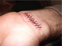 cuidados_cicatriz