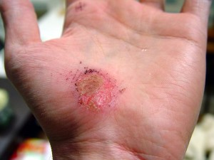 800px-Hand_Abrasion_-_2_days_22_hours_12_minutes_after_injury
